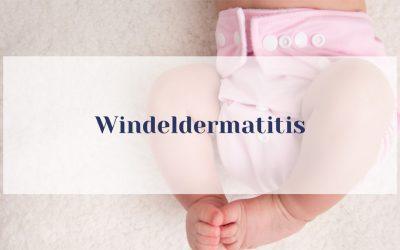 Windeldermatitis – 7 Schätze aus der Natur, um Winderdermatitis bei Babys wirkungsvoll los zu werden und zu vermeiden