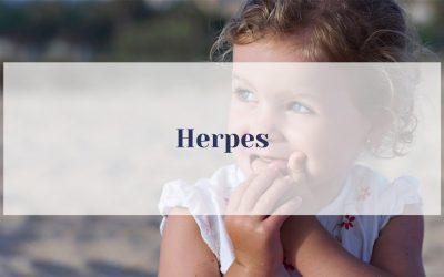 7 natürliche Tipps bei Herpes